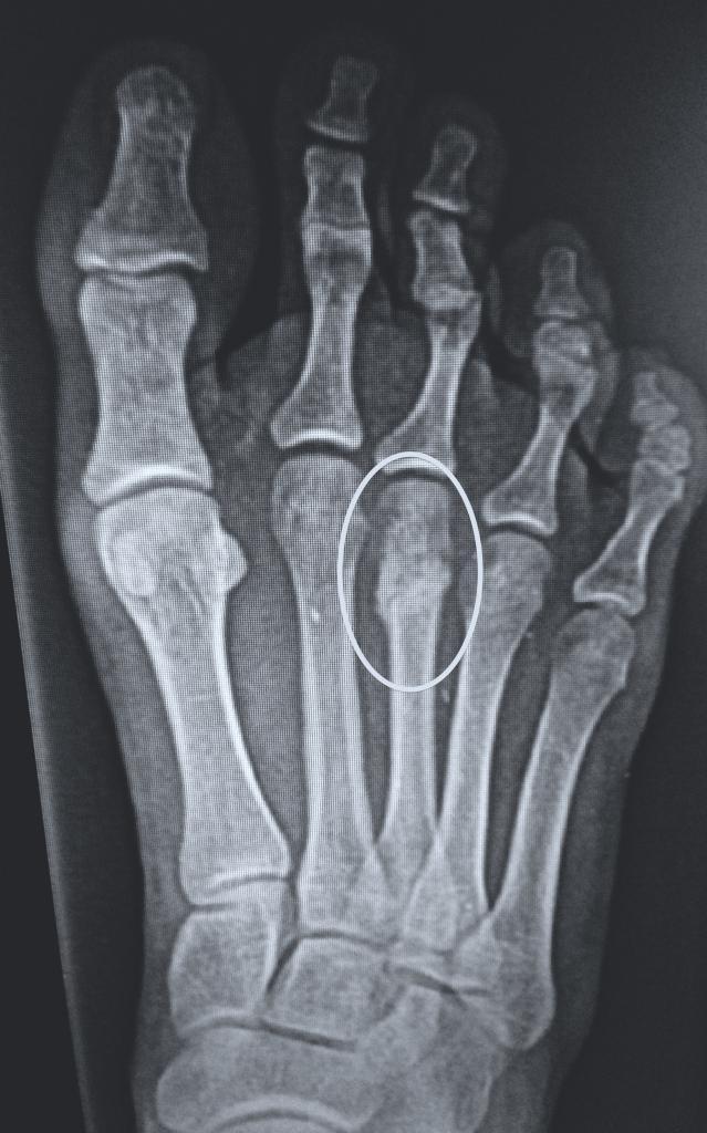 Маршевая стопа на рентгене