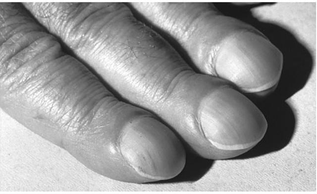 Прикорневой пневмосклероз: симптомы, диагностика, эффективные методы лечения