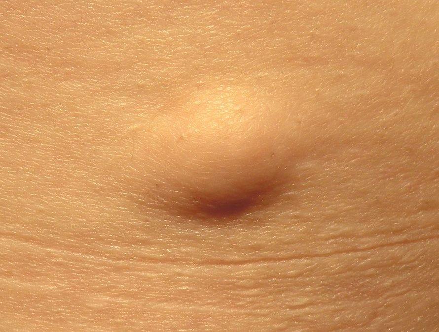 Жировая опухоль - липома