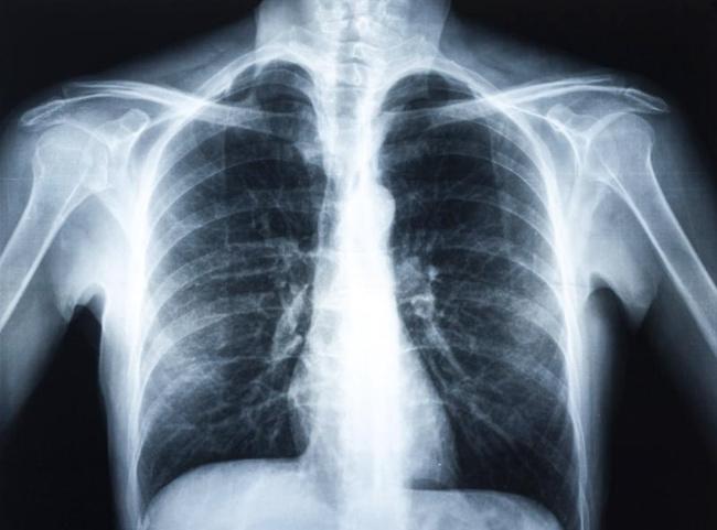 Рентген грудины и ребер