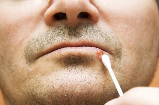 Обработка герпеса на губе