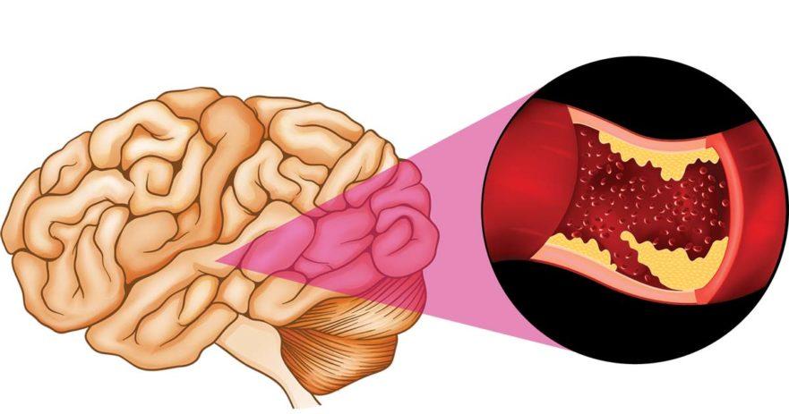 Периваскулярные пространства расширены - что это такое? Причины и лечение