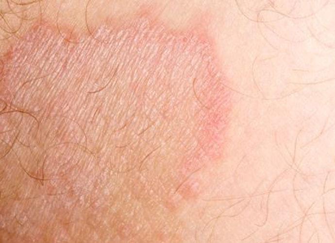 Симптомы интертригинозного дерматита