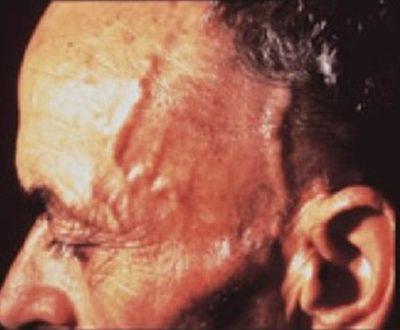 Височный артериит симптомы и лечение фото