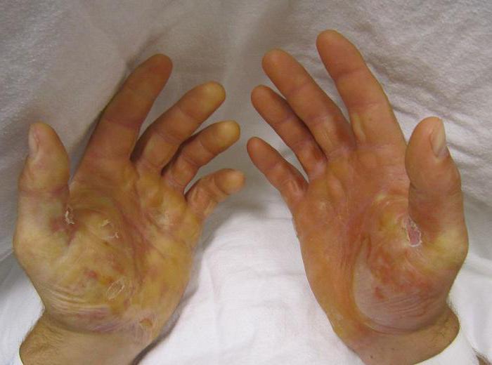 Буллёзный эпидермолиз болезнь