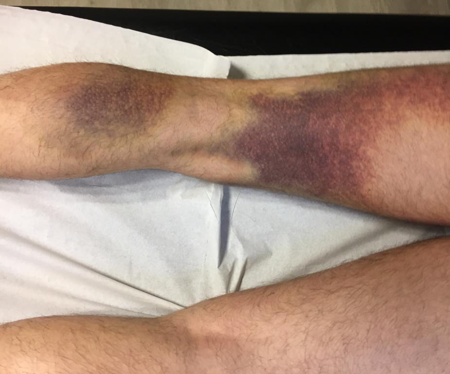 Гематома на ноге: причины и лечение