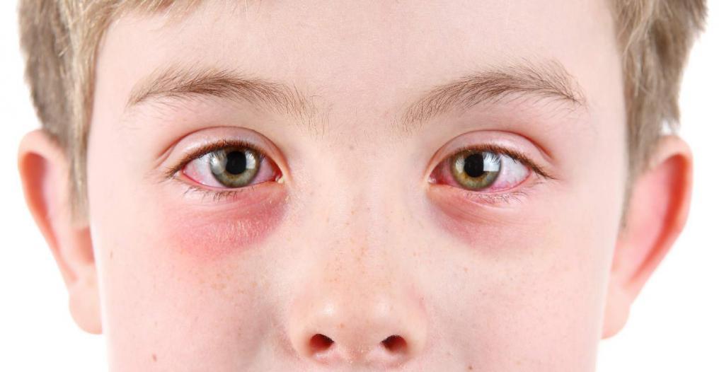 Грибковый конъюнктивит: виды, описание с фото, симптомы, причины, диагностика и лечение
