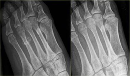 перелом основания 5 плюсневой кости стопы