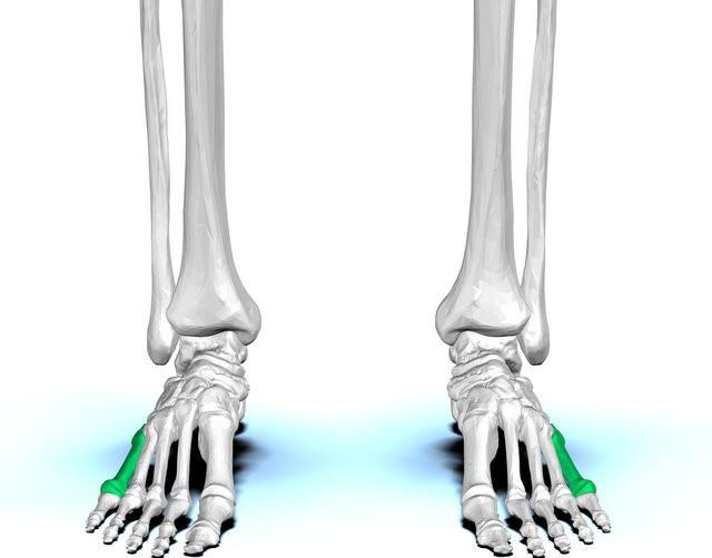 закрытый перелом 5 плюсневой кости