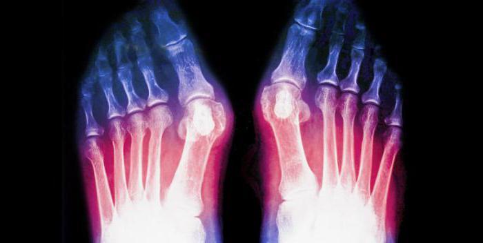 перелом 5 плюсневой кости реабилитация