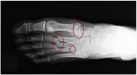 закрытый перелом 5 плюсневой кости стопы