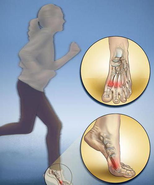 перелом 5 плюсневой кости со смещением