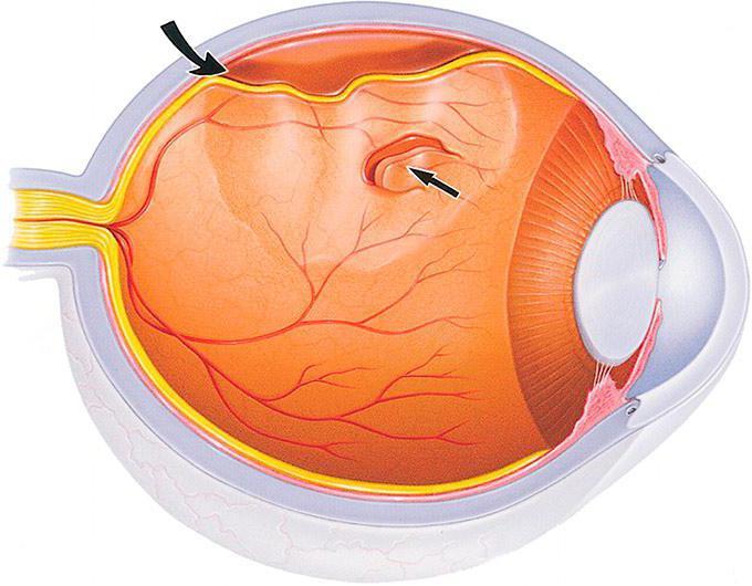 Отслоение сетчатки глаза операция лазером