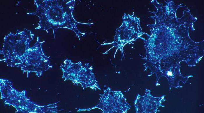 Рак яичников (3 стадия, асцит): сколько живут, прогнозы и особенности лечения