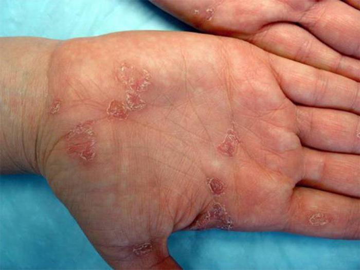 Признаки сифилиса последней стадии