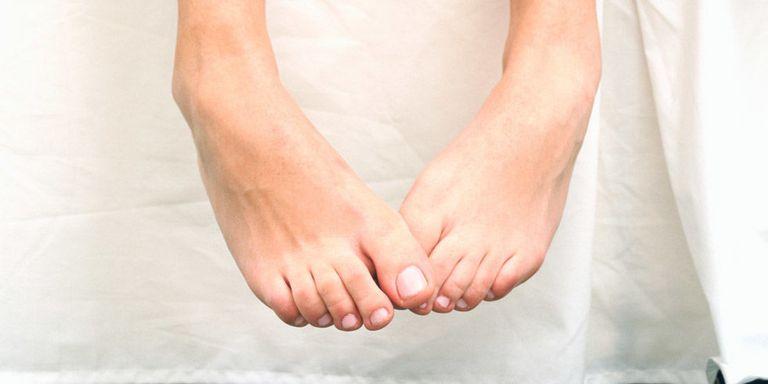 Чем вывести бородавку на пальце ноги