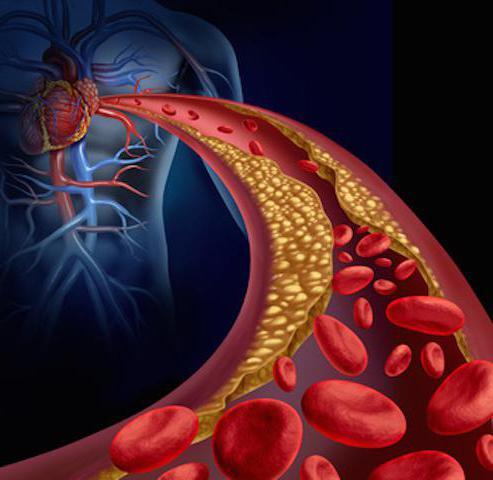 сниженный холестерин причины