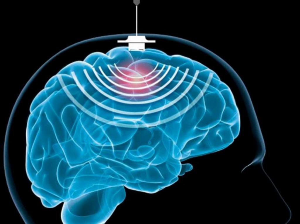 Внутричерепное давление у взрослых: симптомы и лечение ...