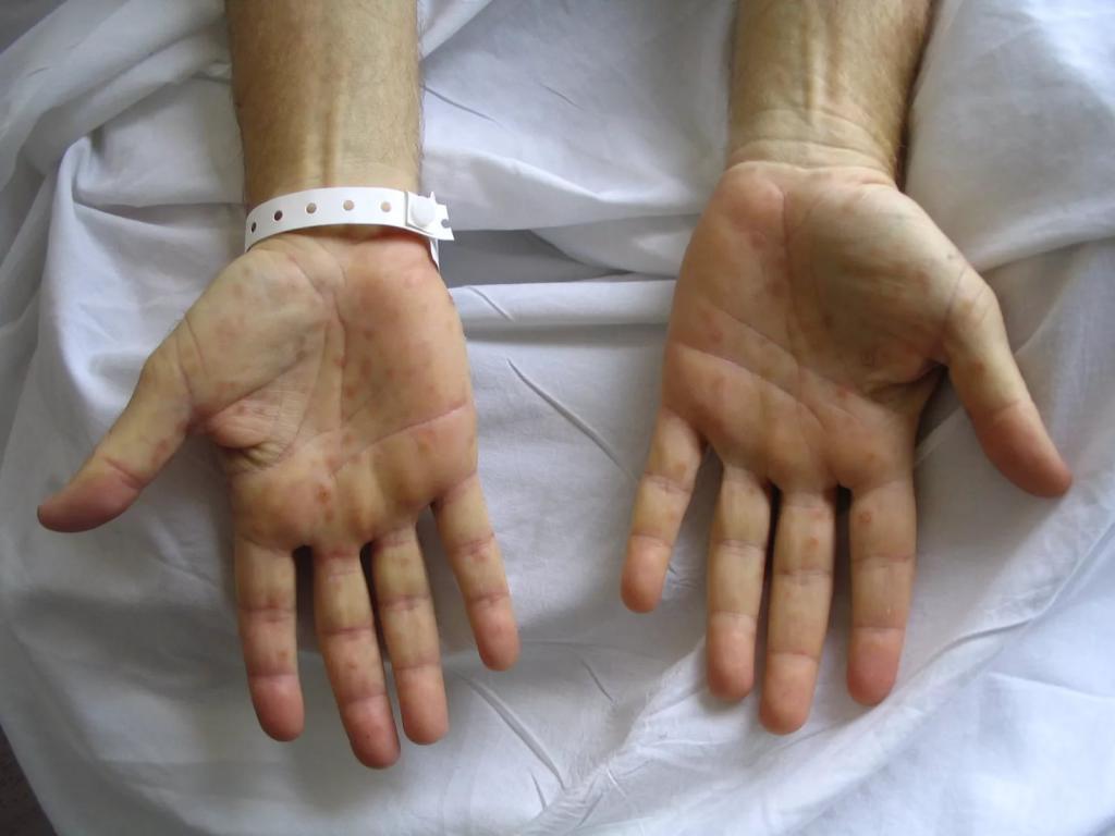 Сифиломы на руках