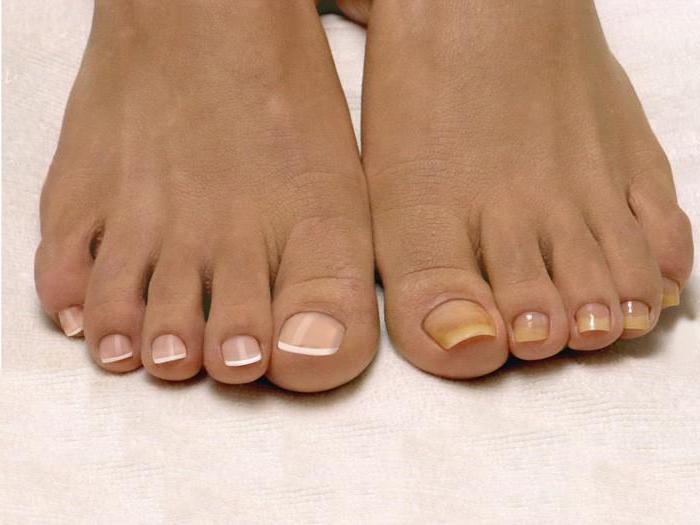 Можно ли делать педикюр при грибке ногтей?