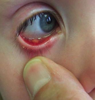 И как лечит ячмень на глазу у ребенка