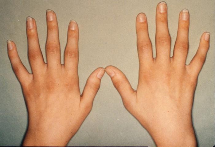 причины болезни суставов и их лечение народными средствами