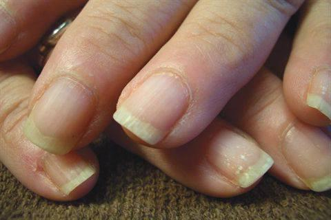 ломаются ногти