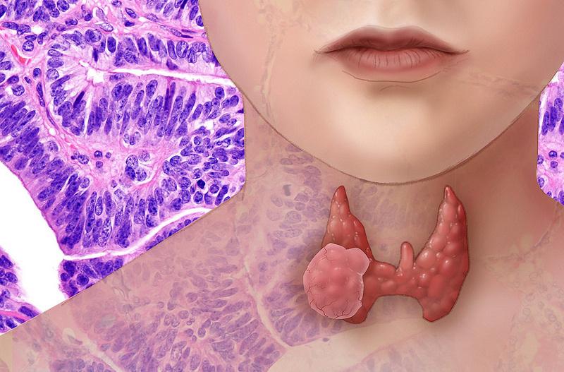 дозировка л тироксина при гипотиреозе