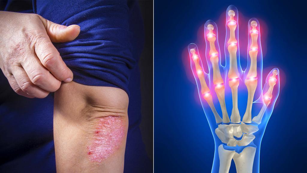 антибактериальная терапия при артритах
