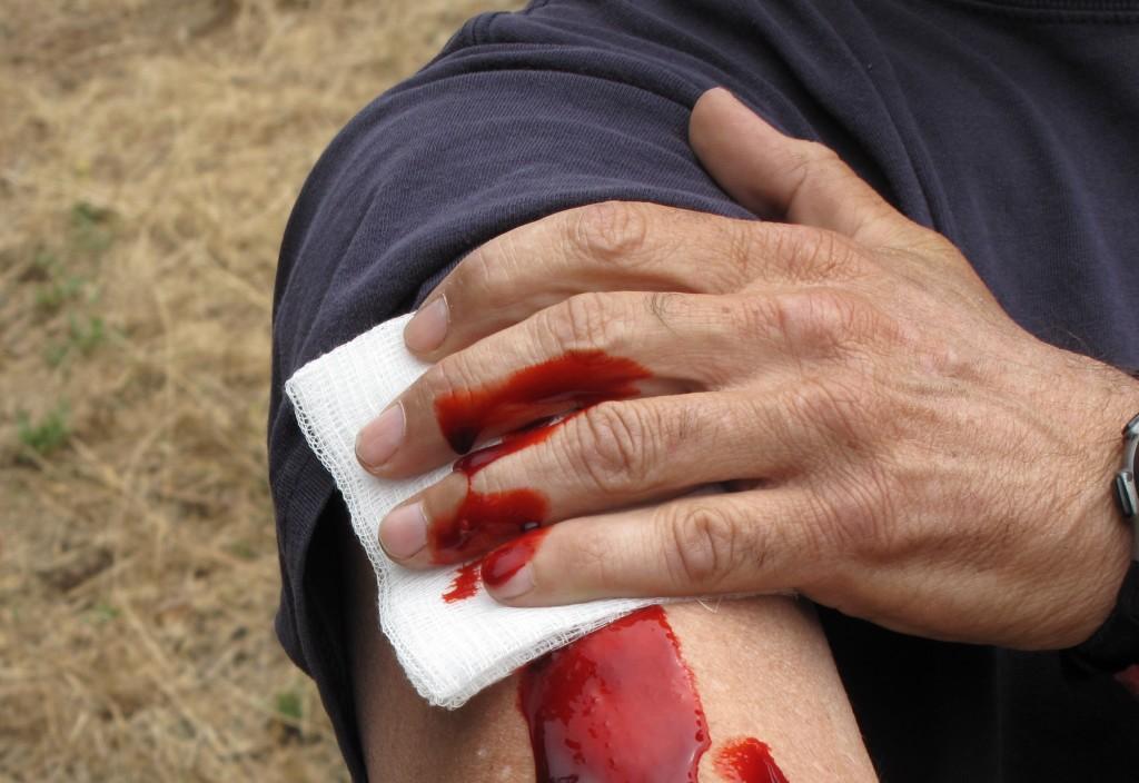 можно ли наносить левомеколь на открытую рану