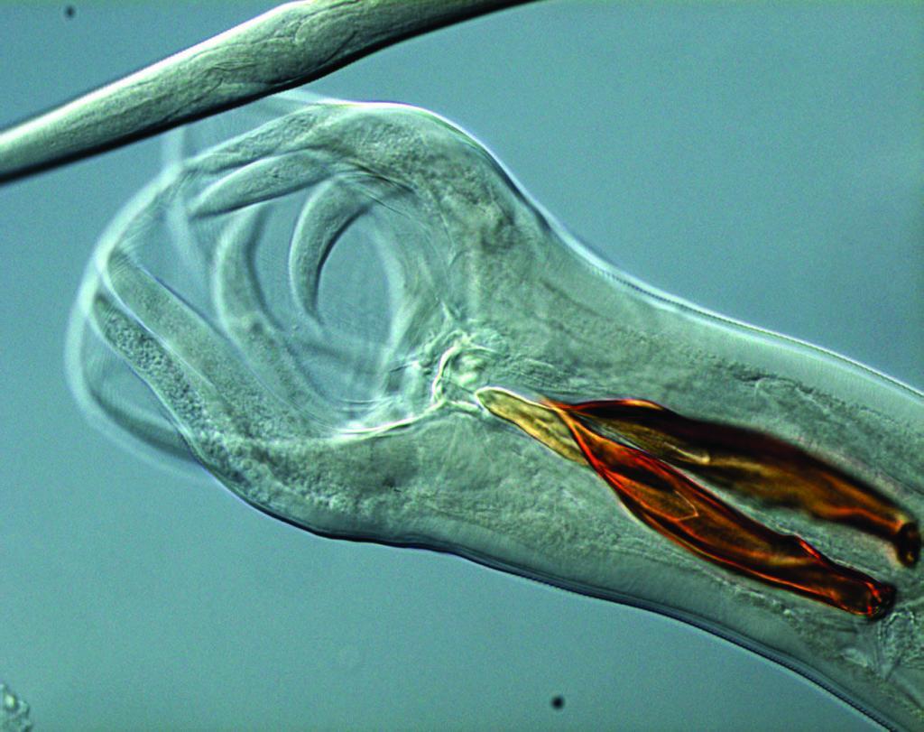 препараты от паразитов в организме человека