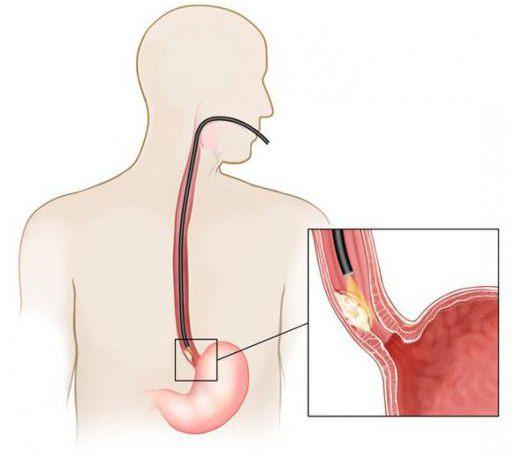 грыжа пищевода операция отзывы