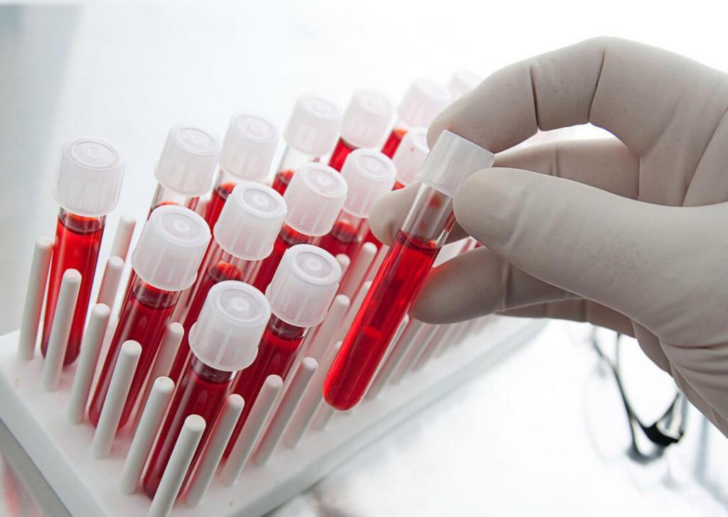 анализ крови у ребенка при лейкозе