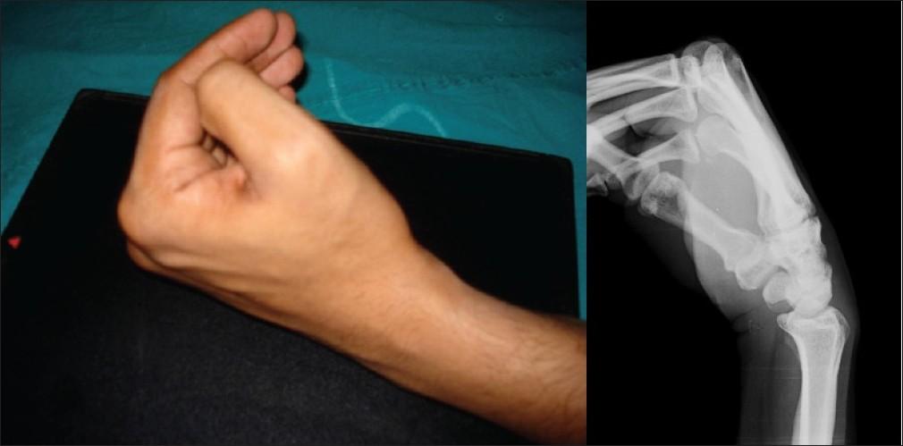 рентген лучезапястного сустава фото