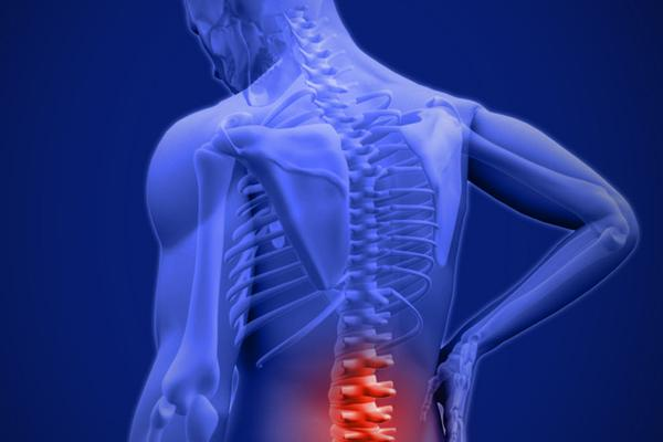 Мази при остеохондрозе поясничного отдела