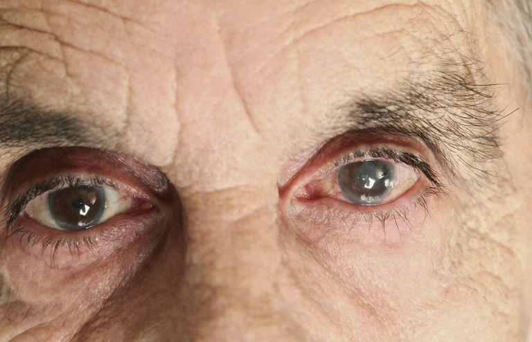 Капли от глаукомы: список лучших, показания и инструкции