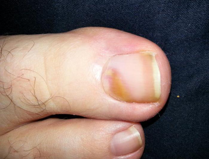 Меланома ногтя ноги