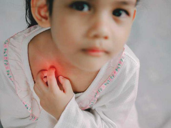Средства от потницы для детей и взрослых. Чем отличается потница от аллергии