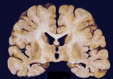 Анти-рецепторный энцефалит: симптомы и лечение