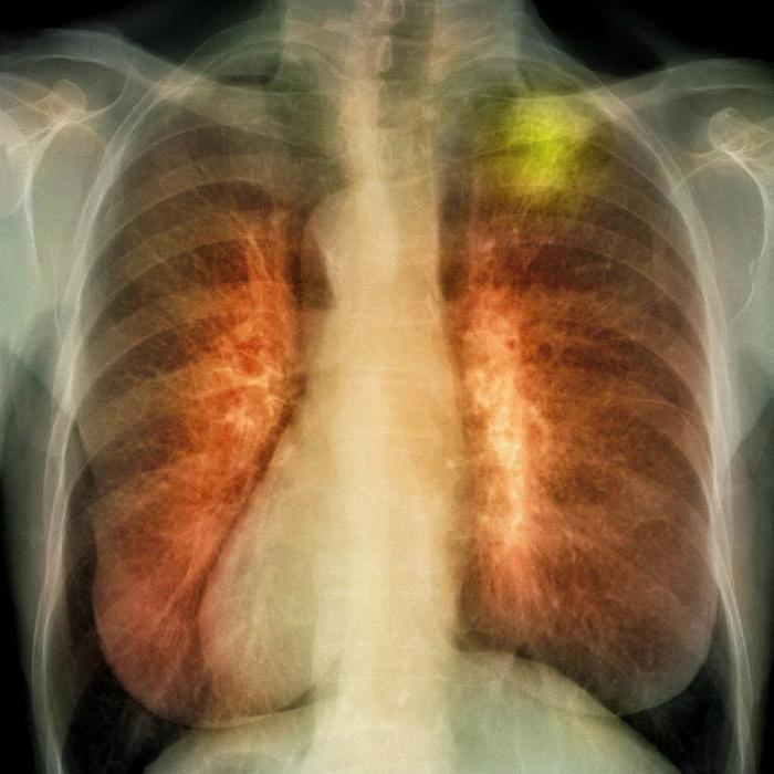 Народное средство лечения сердцебиения
