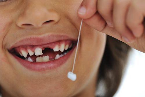 Выпадают зубы во сне с кровью: что значит?