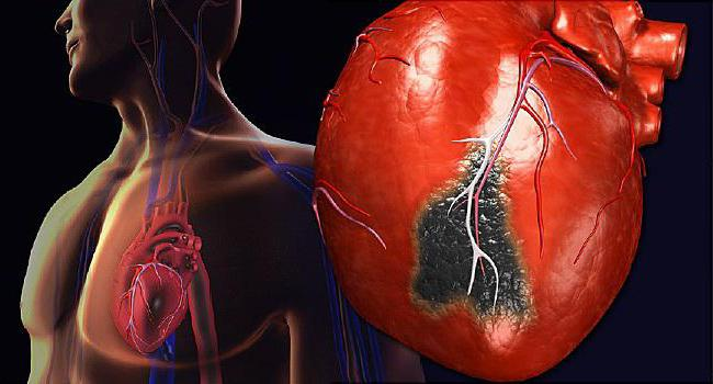 стадии атеросклероза сосудов