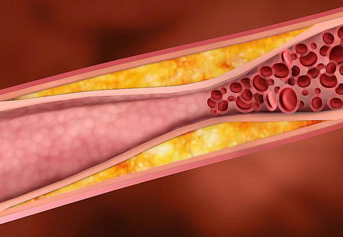 начальная стадия атеросклероза