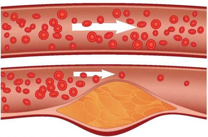 стадии атеросклероза аорты