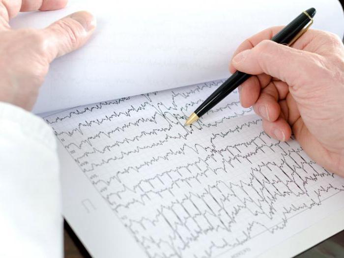 фибрилляция и трепетание желудочков