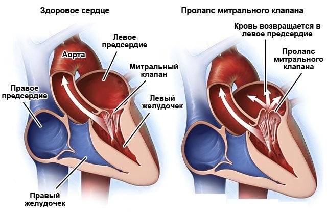 Пролапс митрального клапана и низкое давление