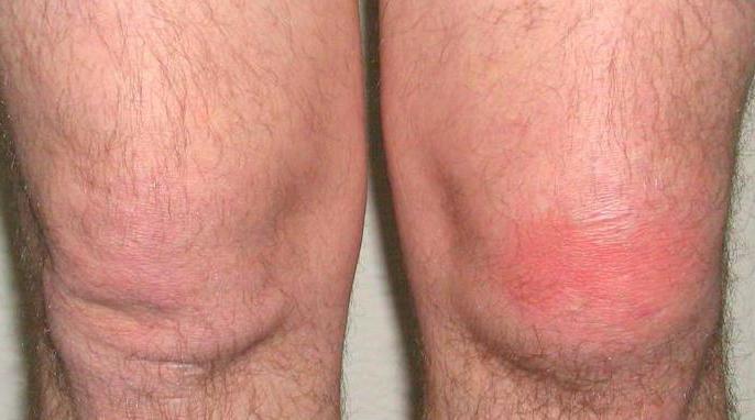 профилактика артрита и артроза