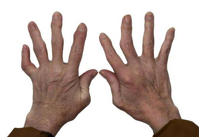 профилактика ревматоидного артрита