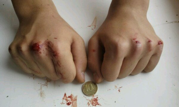 how to play a coin until blood