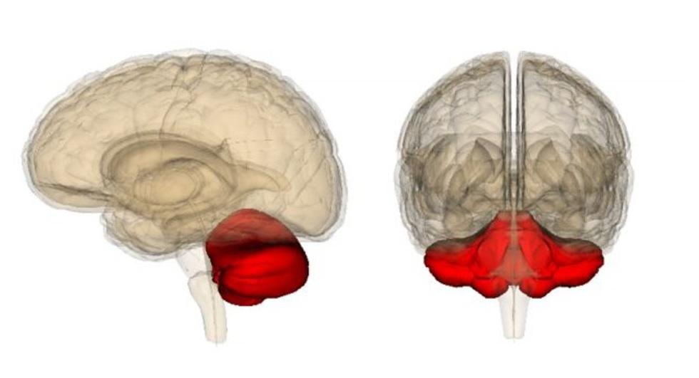 инсульт мозжечка инсульт мозжечка головного мозга